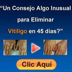 anuncio vitiligo1